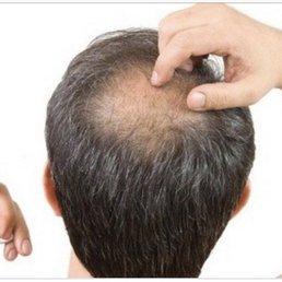 Quels sont les causes de la perte de cheveux